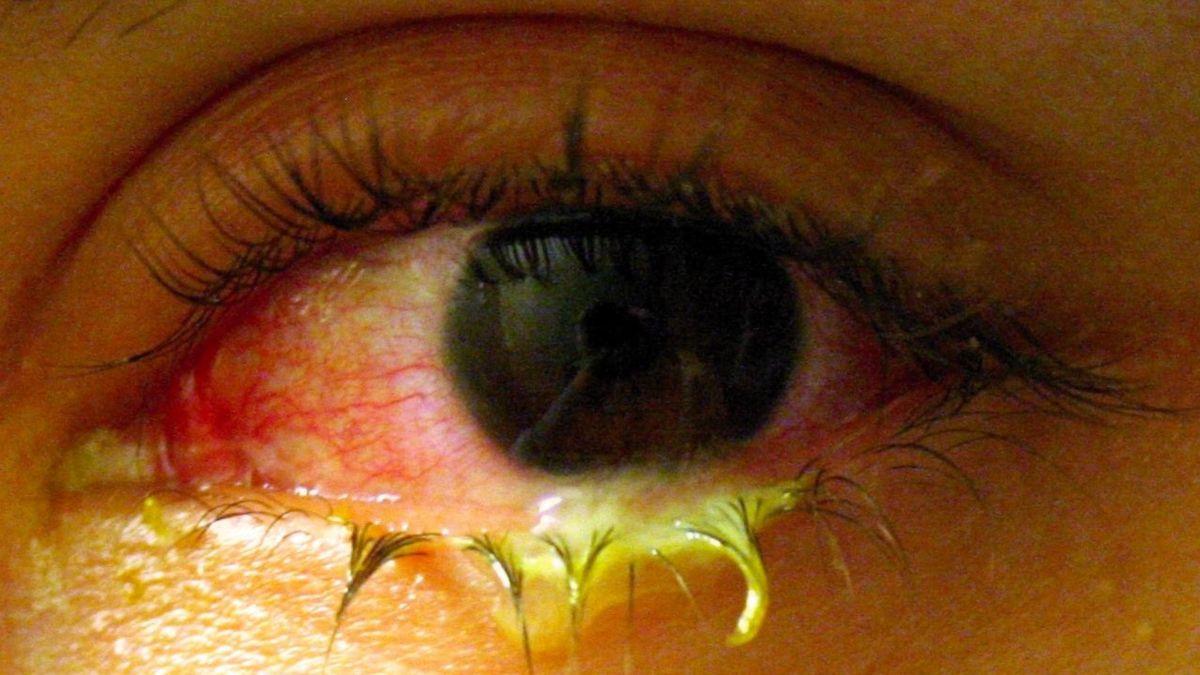 Alertan del peligro de los lentes de contacto de colores cosméticos