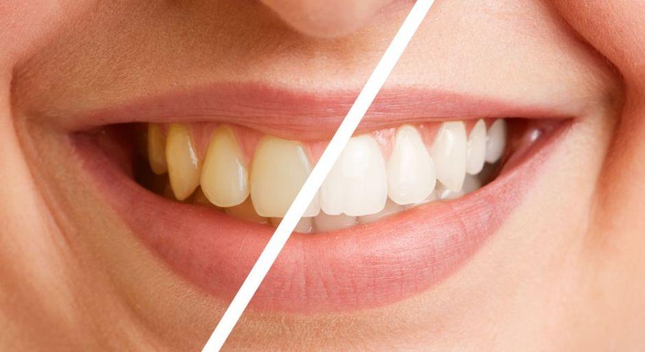 ¿Cómo logar blanquear tus dientes sin gastar una fortuna?