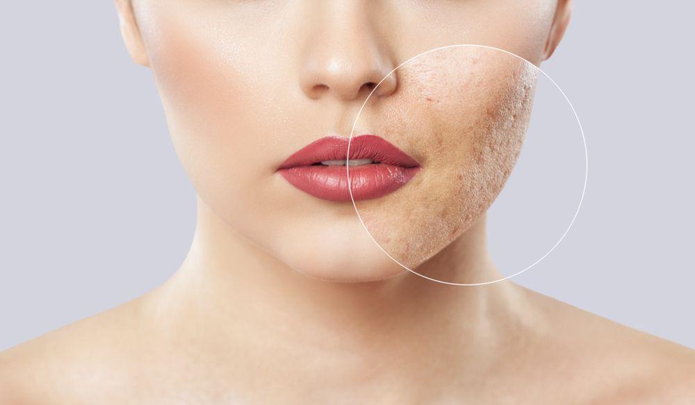 Los 5 mejores productos para eliminar las cicatrices de tu piel por menos de $50