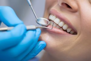 ¿Cuándo es la mejor época del año para ir al dentista?
