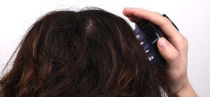 Los mejores 3 cepillos para masajear el cuero cabelludo y estimular su crecimiento