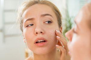 Cómo hidratar la piel seca y sensible para que no se deteriore