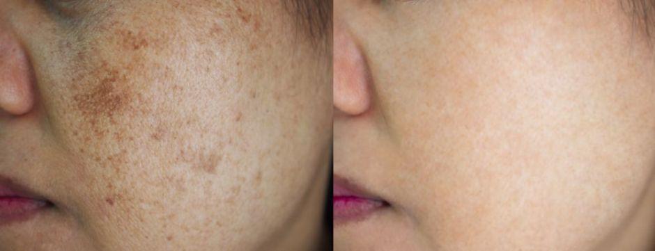 3 ingredientes que ayudan a desvanecer las manchas de paño en la piel