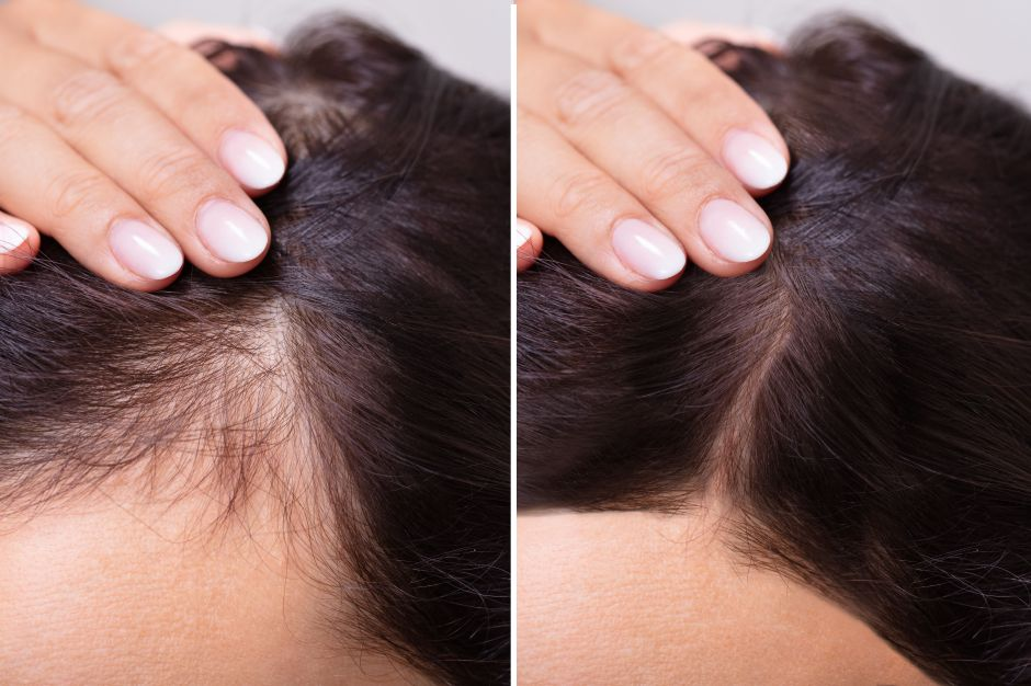 Tratamientos efectivos para hombres y mujeres evitar la caída del cabello