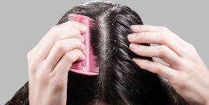 3 productos que frenan la dermatitis seborreica en el cabello y la piel