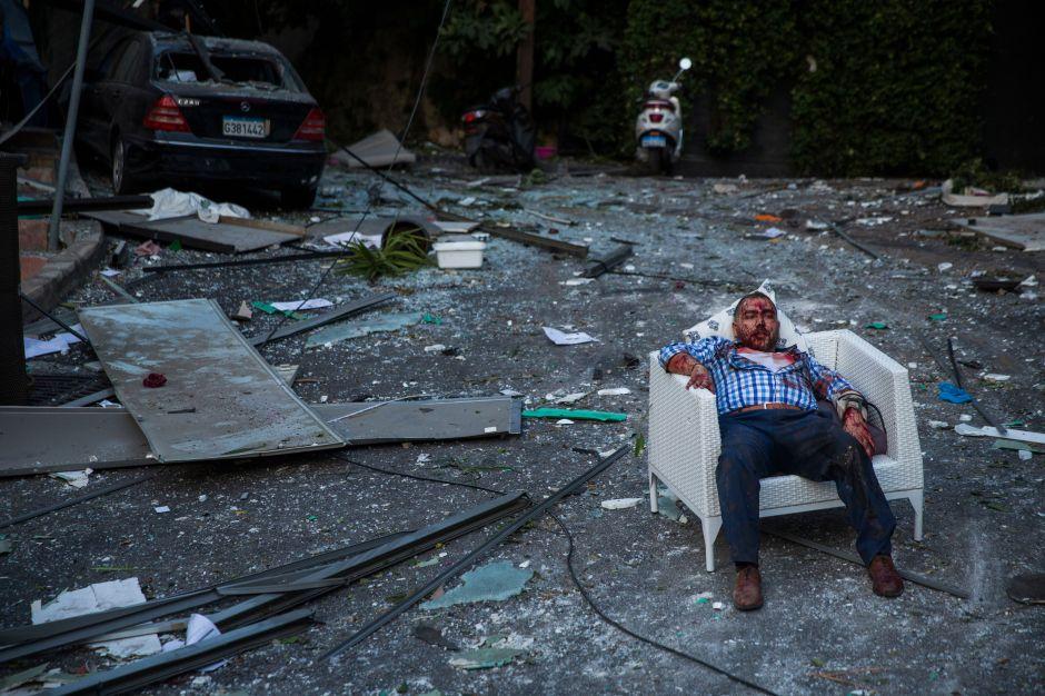 Estiman miles de víctimas por explosión en Beirut