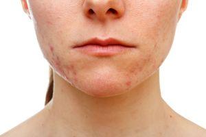 Los 5 mejores productos faciales para eliminar el acné de tu rostro