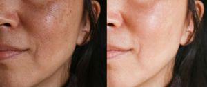 ¿Tienes manchas en la piel? Las mejores cremas, sueros y aceites para aclararlas