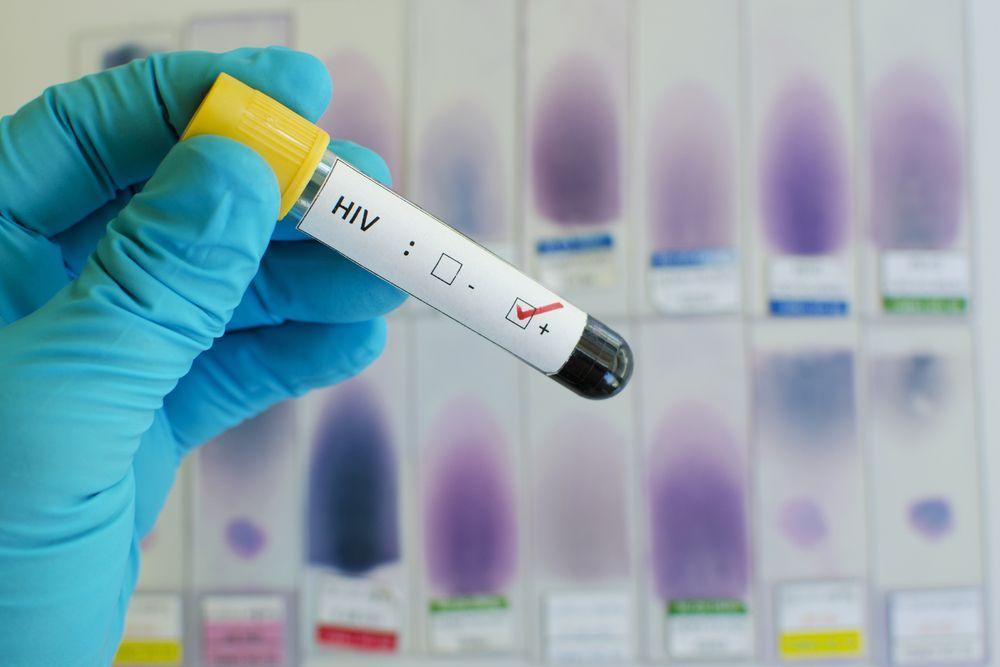 En ocho años los nuevos casos de VIH han disminuido 65% en San Francisco.